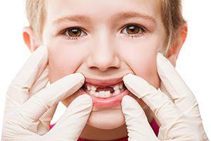 Children's Periodontal Health