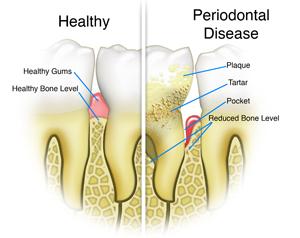 Healthy Teeth VS Periodontal Disease