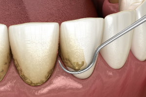 Teeth Scaling and Root Planing